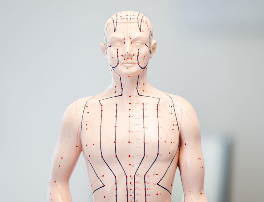 Akupunktur – punktgenau und ganzheitlich